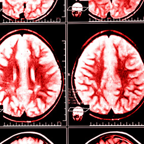 Brain Imaging Reveals Adhd As >> Worth 1 000 Words What A Brain Scan Reveals About Adhd The