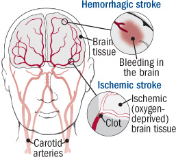 illustration of brain showing hemorrhagic and ischemic stroke