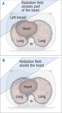 illustration of breath hold for breast x-ray