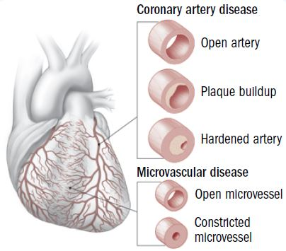 coronary heart disease thesis statement 0531 the writing process: drafting: thesis statements clear thesis statement is the first step in increases in coronary heart disease in all the.