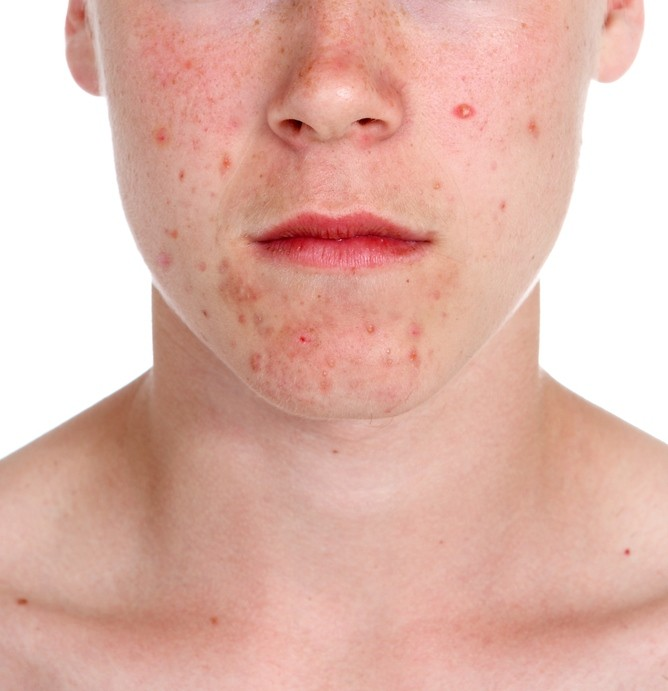 Natural Cure For Acne And Pimples