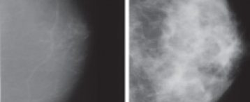 The breast density-breast cancer connection