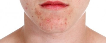 Active Treatments To Cure For Chronic Acne