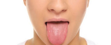 Home Remedies For Get Rid Of Swollen (Inflamed) Taste Buds