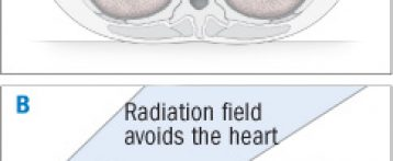 Radiation for breast cancer is linked to narrowing of the coronary arteries