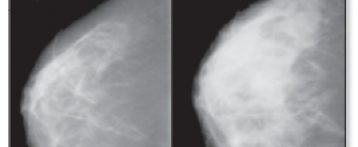 Why breast density matters