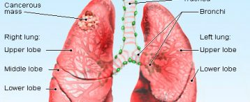 Keytruda May be can extend Lung Cancer Patient's Lives